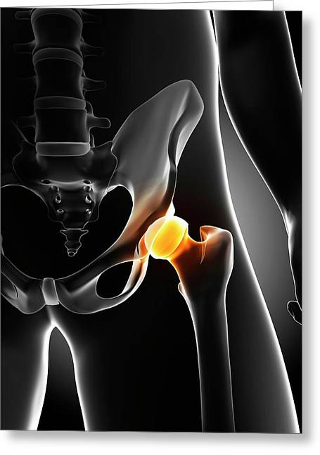 Hip Pain Greeting Card by Sciepro/science Photo Library