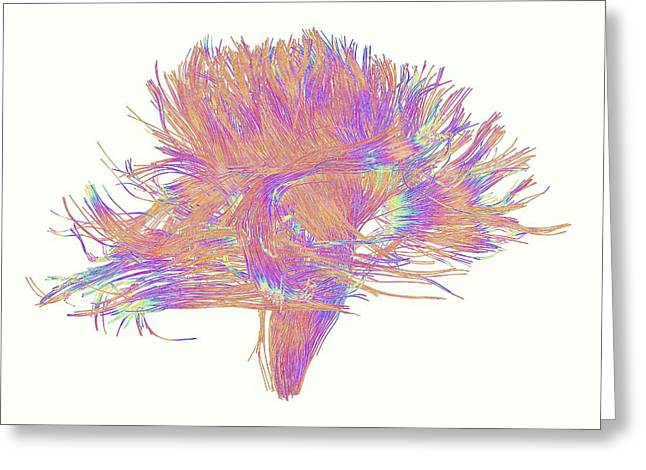 White Matter Fibres Of The Human Brain Greeting Card by Alfred Pasieka