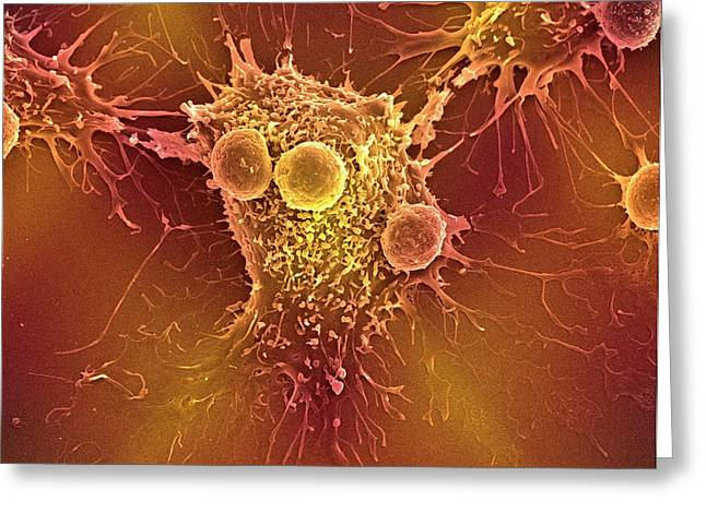 Cancer Cell And T Lymphocytes Greeting Card by Steve Gschmeissner