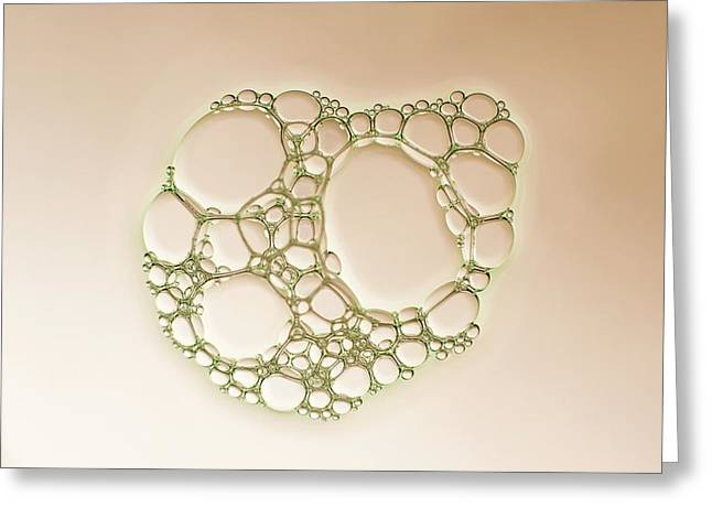 Soap Bubble Foam Greeting Card by Kym Cox