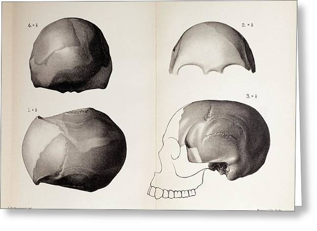 1913 Toned Skull Plate Piltdown Man Hoax Greeting Card by Paul D Stewart
