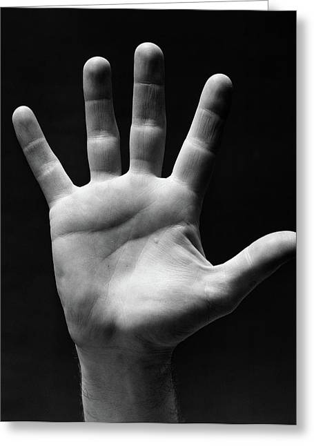 1930s Palm Of Mans Hand Gesture Of Stop Greeting Card