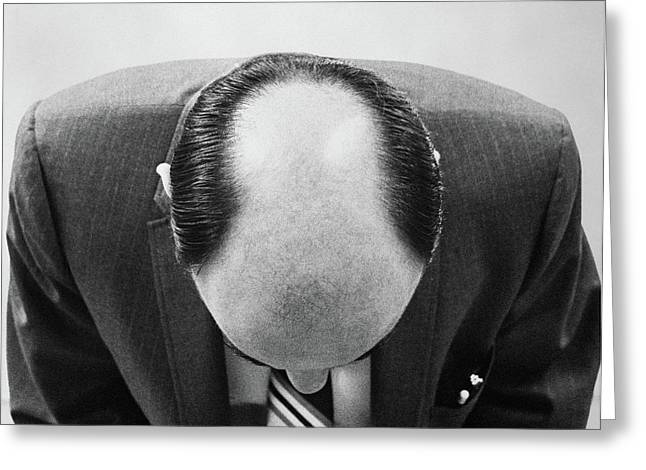 1960s Top Of Mans Bald Head Can See Greeting Card
