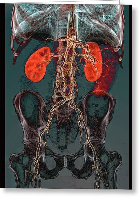 Aortic Atheromas Greeting Card by Zephyr