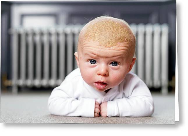 Baby With Cradle Cap Greeting Card