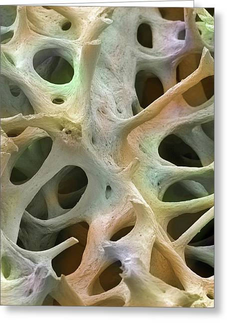 Bone Tissue Greeting Card