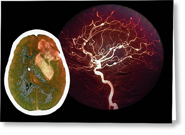 Brain Haemorrhage From Aneurysm Greeting Card by Zephyr/science Photo Library