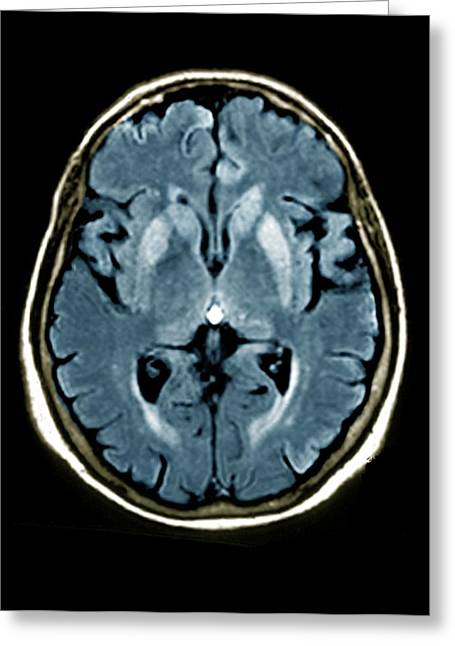 Brain In Creutzfeldt-jakob Disease Greeting Card