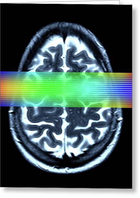 Brain Mri Scan Greeting Card by Alfred Pasieka