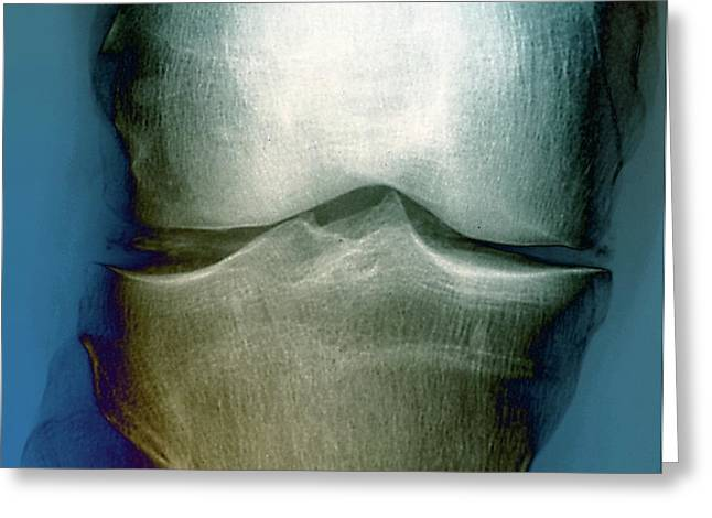 Calcification In The Knee Greeting Card