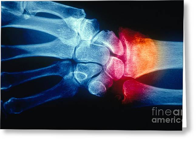 Colles Fracture, X-ray Greeting Card by Scott Camazine