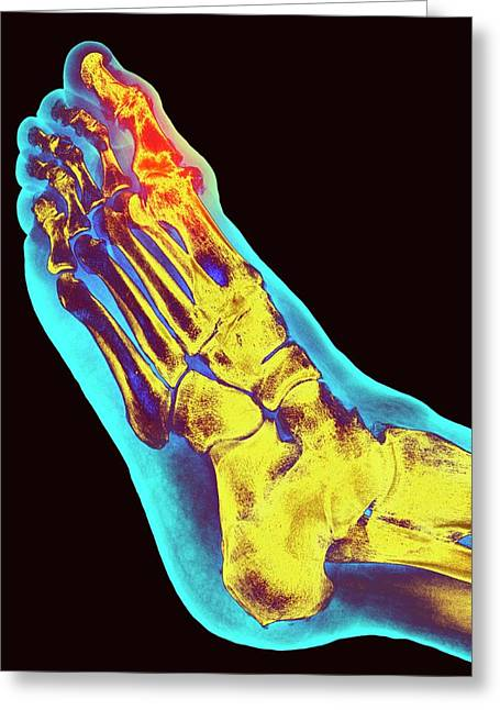 Degenerative Foot Deformation Greeting Card
