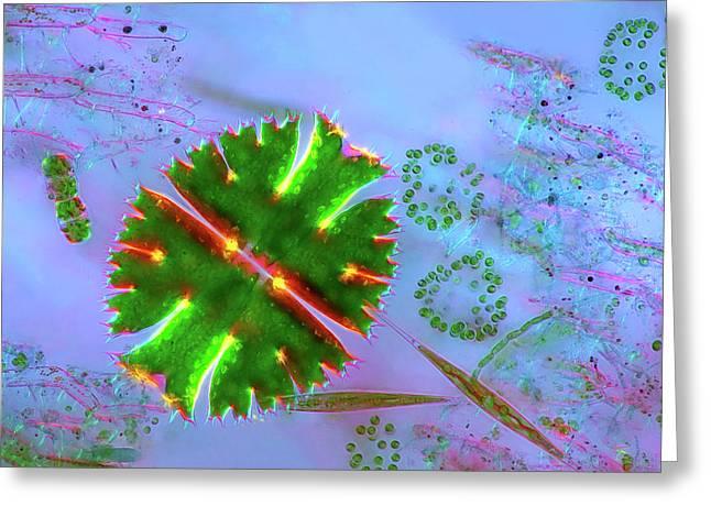 Desmid And Dictyosphaerium Green Algae Greeting Card by Marek Mis