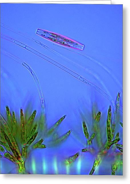 Diatom And Green Algae Greeting Card
