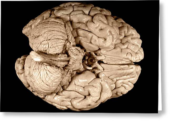 Einstein's Brain Greeting Card by Otis Historical Archives, National Museum Of Health And Medicine