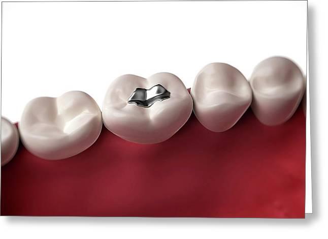 Filling In Human Tooth Greeting Card by Sebastian Kaulitzki