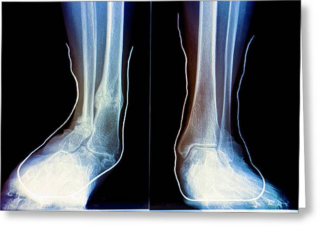 Flat Feet With Supports Greeting Card by Zephyr