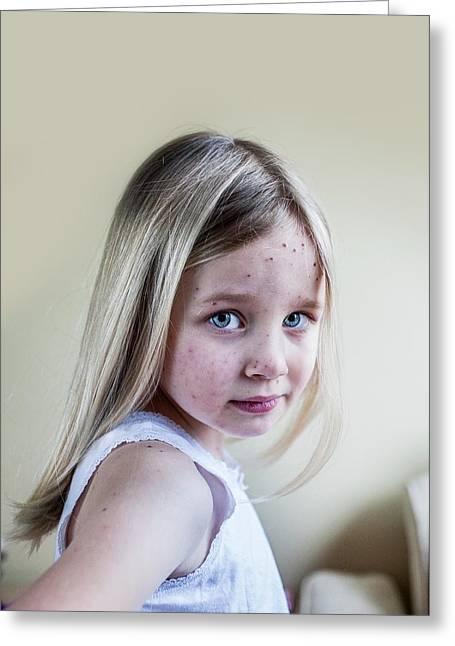 Girl With Chickenpox Greeting Card by Samuel Ashfield