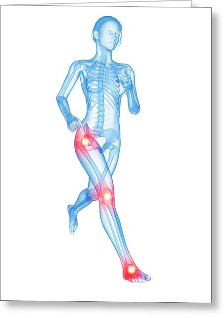 Human Joints Greeting Card