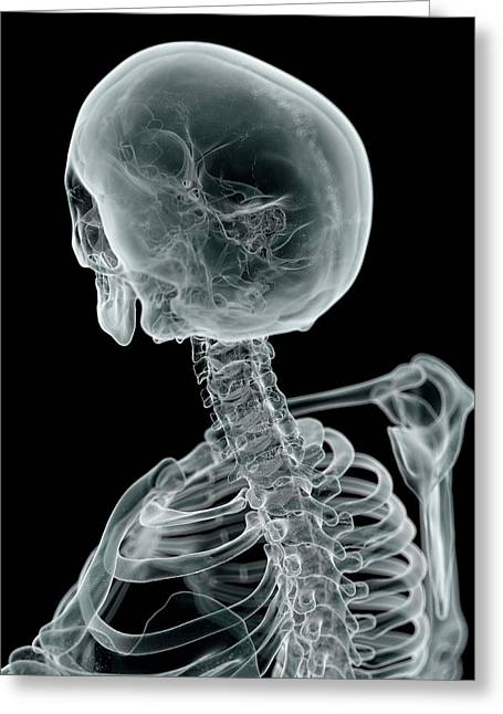 Human Skull And Neck Greeting Card by Sciepro