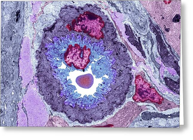 Intestinal Arteriole, Tem Greeting Card by Science Photo Library