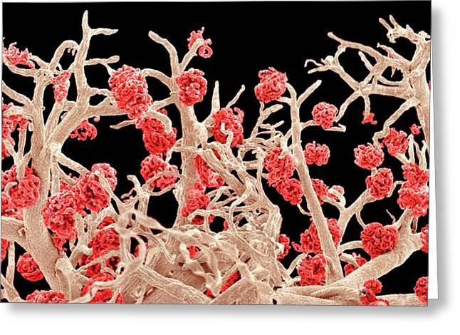 Kidney Blood Vessels Greeting Card by Susumu Nishinaga