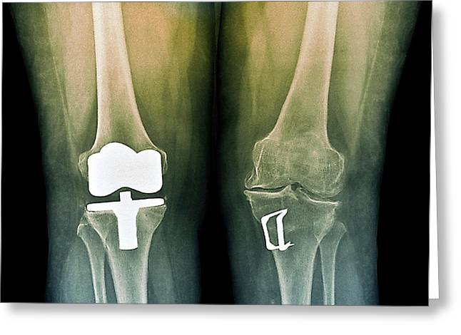 Knees After Corrective Surgery Greeting Card