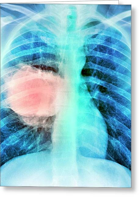 Lung Cancer Greeting Card by Du Cane Medical Imaging Ltd