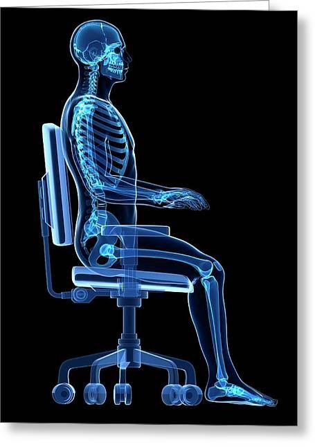 Person Sitting With Incorrect Posture Greeting Card by Sebastian Kaulitzki