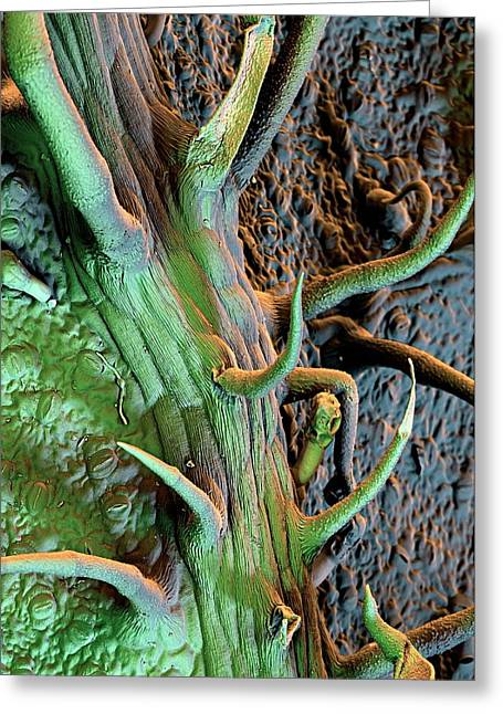 Potato Leaf Trichomes Greeting Card by Stefan Diller