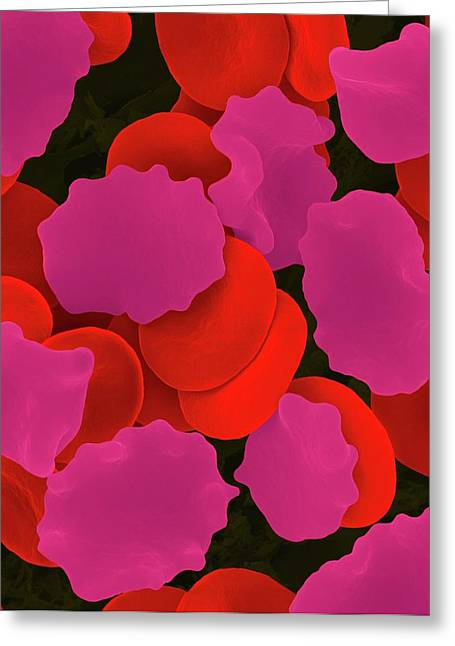 Red Blood Cells In Hypertonic Solution Greeting Card by Dennis Kunkel Microscopy/science Photo Library
