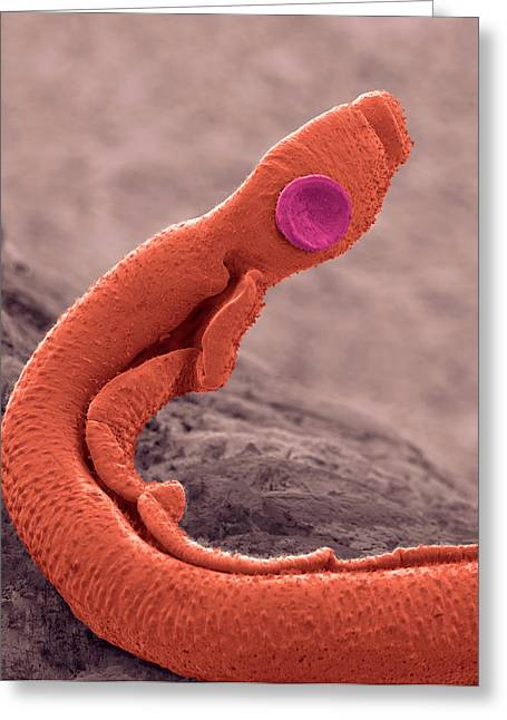 Schistosoma Flatworm Greeting Card