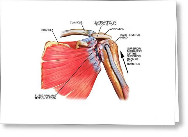 Shoulder Tendon Injury Greeting Card by John T. Alesi