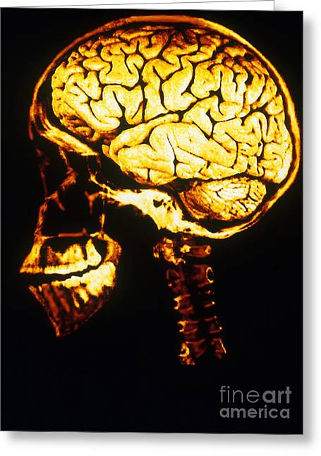 Skull With Brain Greeting Card