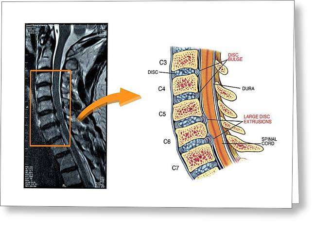 Slipped Discs In The Cervical Spine Greeting Card by John T. Alesi