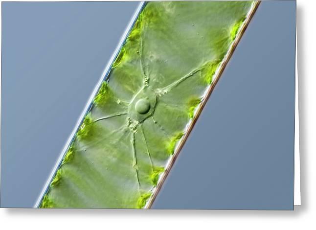 Spirogyra Green Alga Greeting Card