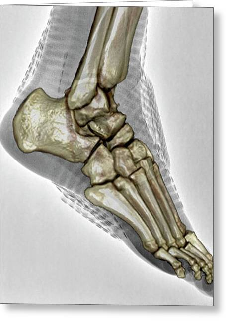 Sprained Ankle Greeting Card by Zephyr