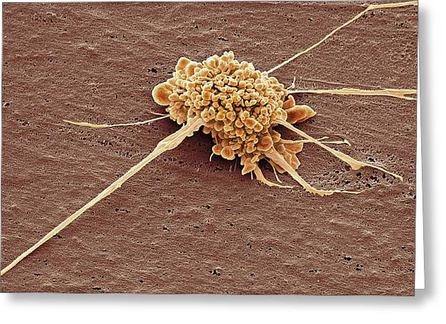 Stem Cell Greeting Card by Steve Gschmeissner