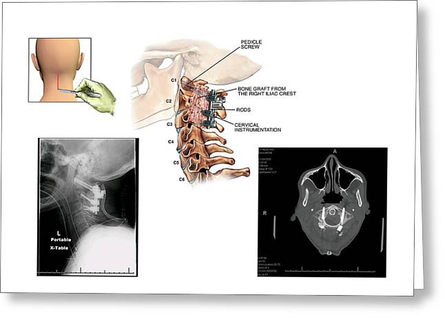 Surgery To Fuse The Cervical Spine Greeting Card by John T. Alesi