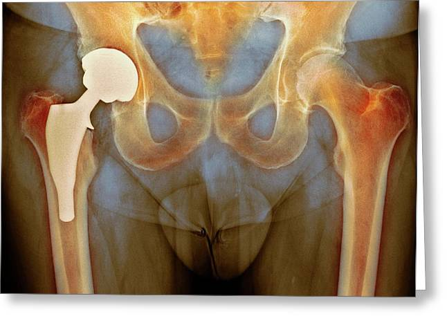Total Hip Replacement Greeting Card by Dr P. Marazzi