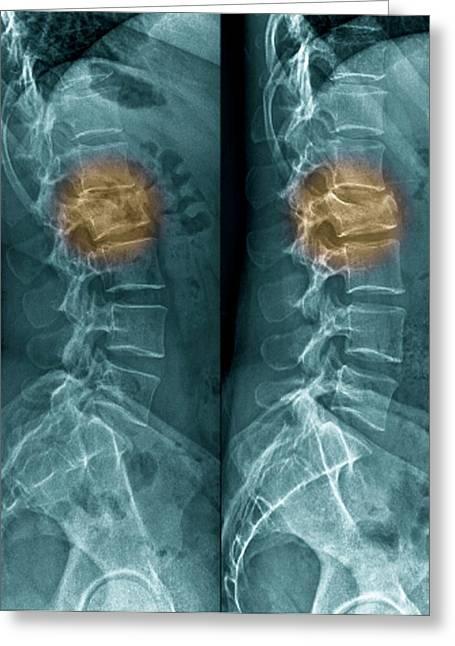 Untreated Fractured Vertebra Greeting Card by Zephyr