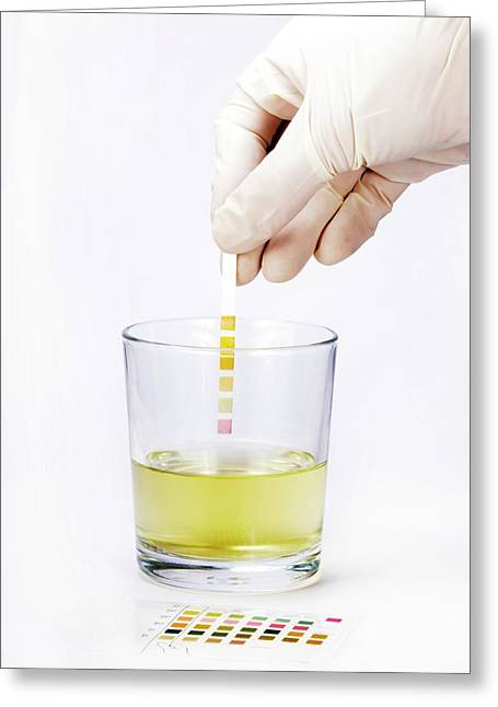 Urine Home Test Kit Greeting Card