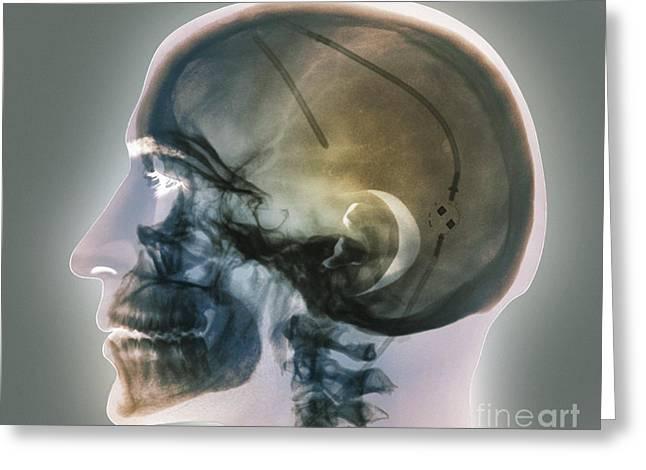 Ventricular Shunt, X-ray Greeting Card