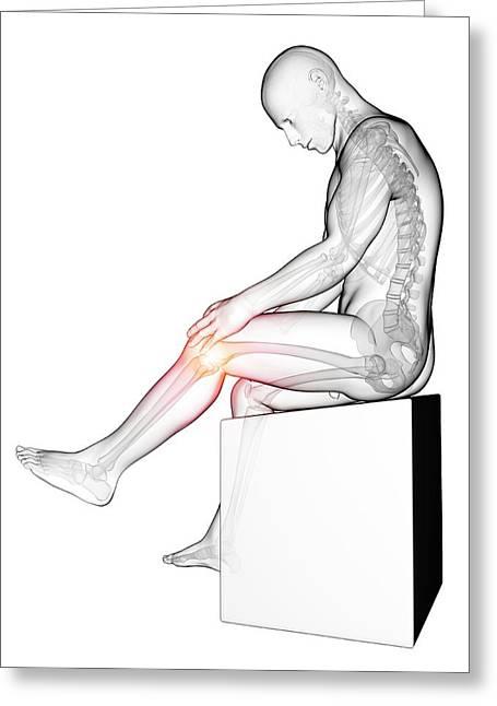 Human Knee Pain Greeting Card by Sebastian Kaulitzki