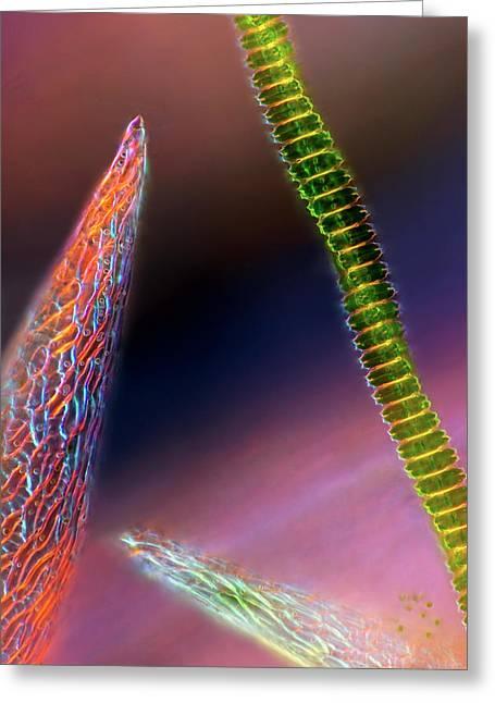 Desmid On Sphagnum Moss Greeting Card by Marek Mis