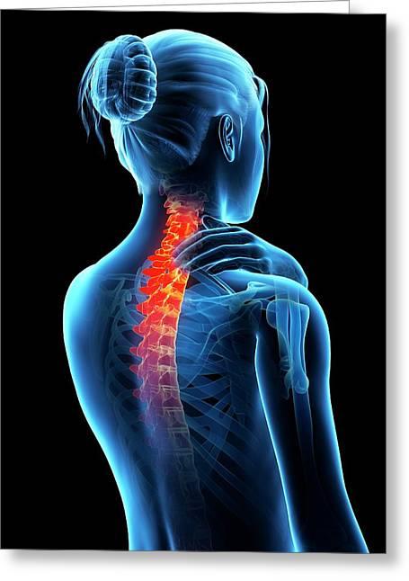 Human Neck Pain Greeting Card by Sebastian Kaulitzki