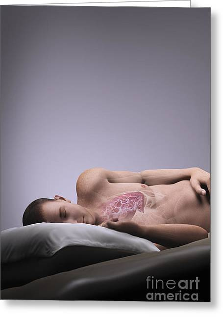 Sleep Apnea Greeting Card by Science Picture Co