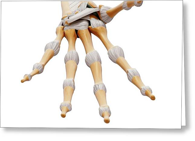 Human Hand Bones Greeting Card by Pixologicstudio/science Photo Library