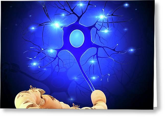Nerve Cell Greeting Card by Pixologicstudio