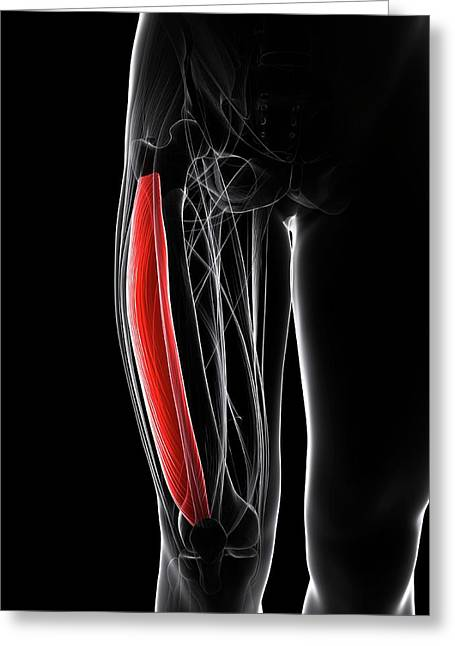 Thigh Muscle Greeting Card by Sciepro/science Photo Library